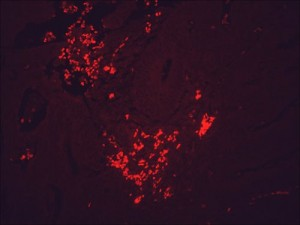 IF detection of Hsp90 in cancerous human colon tissue, using Anti-Hsp90 (clone: H9010)