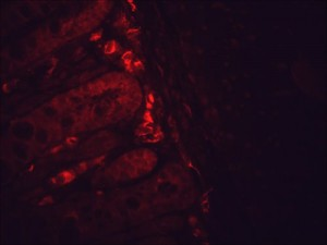 IF detection of Hsp90 in cancerous mouse colon tissue, using Anti-Hsp90 (clone: H9010)