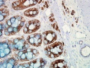 IHC detection of Hsp90 in cancerous human colon tissue